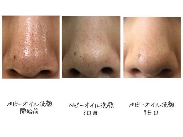 ベビーオイル洗顔